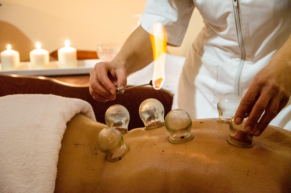 Massaggio Cupping